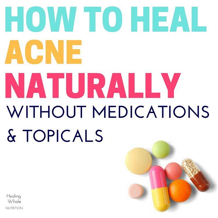 new on the blog  a nutritional post about acne!hellip